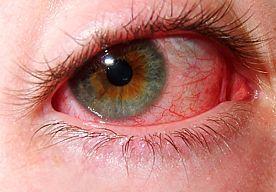 14-Jun-2015 11:36 - VROUW SLAAPT MET OGEN OPEN NA DRAMATISCHE OOGLIFT. Dawn Knight liet in 2012 haar ogen liften in een kliniek in Birmingham. Een ingreep die dramatisch misging. Dawn kan nu haar ogen niet meer…...