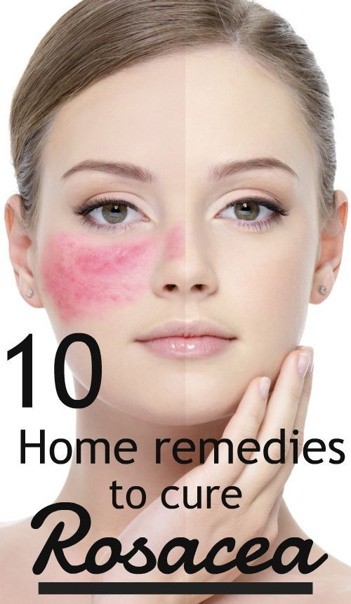 The Best Natural Remedies For Rosacea Health Women Beauty Skin