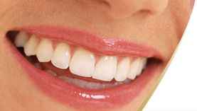 If you want to Instantly brighten your smile, the answer is laser teeth whitening. Its not as expensive as it used to be and yes, they now do it at Spa's!