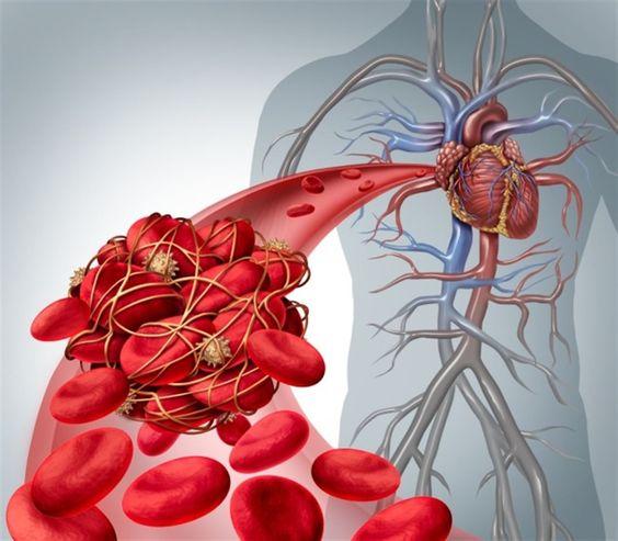La trombosis en 8 cuestiones clave