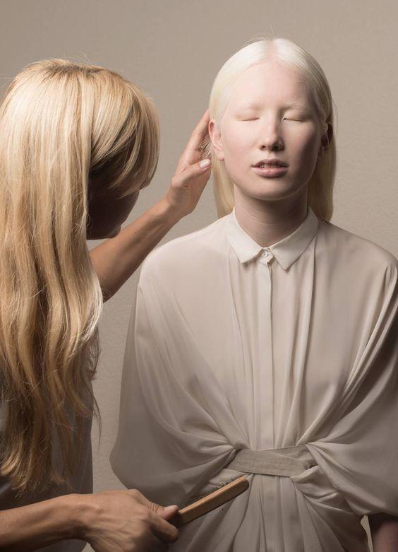 Albino nude girl pics