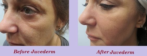 Do you know about juvederm treatment? View 'Before and After' Photos of juvederm Treatment here.