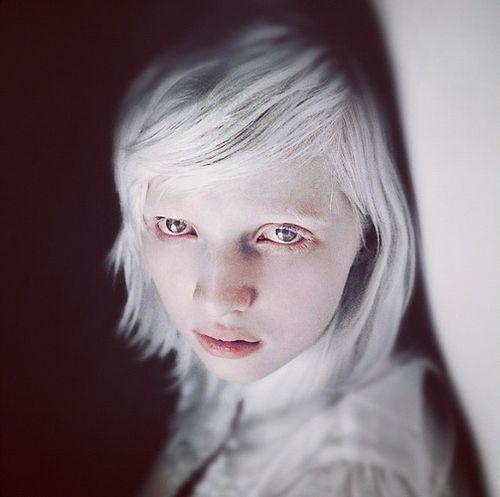 Pin By Marcos On Nastya Kumarova Albino Girl Melanism Human Albino Human