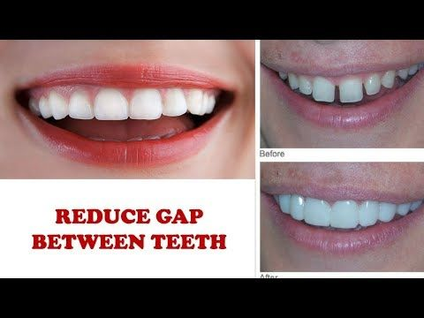 sportskor få nya Utgivningsdatum How to reduce gap between teeth naturally home remedies without ...