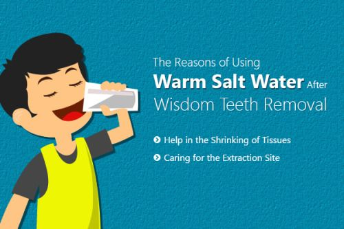 Why Do Use Warm Salt Water For Caring After Wisdom Teeth Removal Wisdom Teeth Wisdom Teeth Removal After Wisdom Teeth Removal