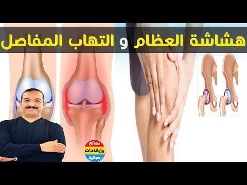 اللص صامت هو هشاشة العظام و التهاب المفاصل وصفات طبيعية وفعالة للعلاج مع الدكتور محمد أوحسين Youtube Movie Posters Movies Poster