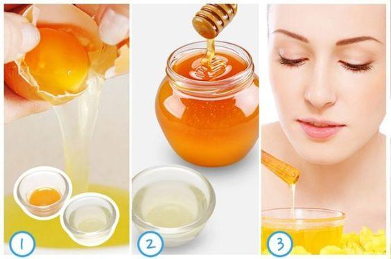 Dùng mật ong và lòng trắng trứng chữa mụn cám