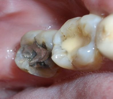 Wie Amalgamfüllungen Zähnen schaden