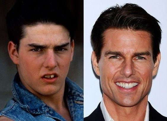 Tom Cruise's teeth, before and after. I guess enough money can make anyone look good