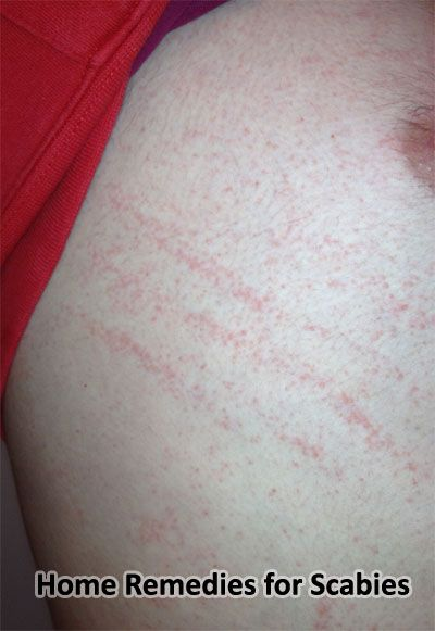 Is There A Natural Way To Treat Scabies
