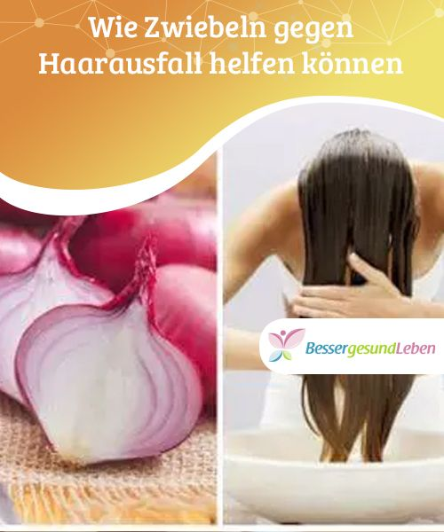 Wie Zwiebeln Gegen Haarausfall Helfen Konnen Besser Gesund Leben Haarausfall Hausmittel Gegen Haarausfall Haarausfall Vitamine
