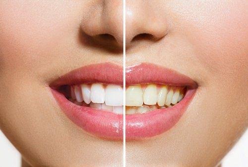 denti gialli vs denti bianchi