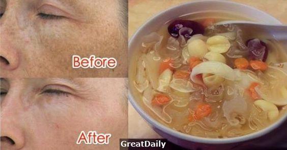 神到會哭!臉上的斑一吃就掉,只要清水加上...,簡單製作又好喝!就能潤澤皮膚、祛斑、減肥!