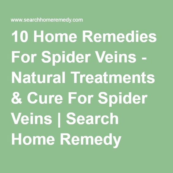 10 Home Remedies For Spider Veins - Natural Treatments & Cure For Spider Veins | Search Home Remedy