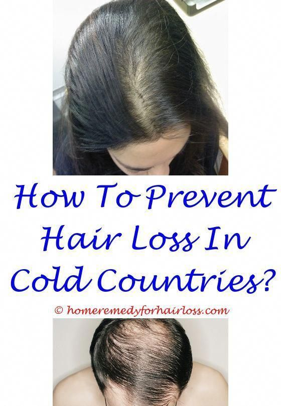 Hair Loss After Taking Tren Months Ago Thyroid Medication That Does Cause Hair Loss Dry Scalp Hair Loss Baby S Hair Loss Remedies Hair Loss Natural Hair Loss