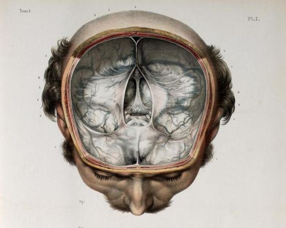 Skull divided to remove anterior hemisphere, brain removed to show cranial fossa and dura mater. Tentorium cerebelli shown intact, some cranial nerves visible, anterior view. Illustration by Nicolas Henri Jacob from Traité Complet De L'anatomie De L'homme by Marc Jean Bourgery, 1831. ~~ www.facebook.com/TheIrregularAnatomist ~~ www.twitter.com/Irr_Anatomist