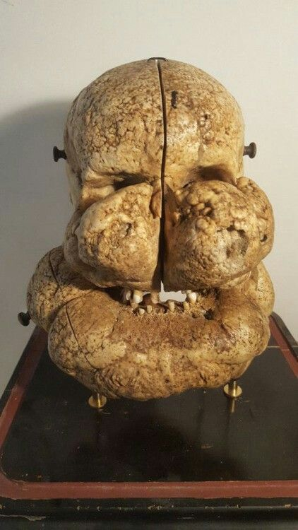 Human skull from a patient with Proteus syndrome. Only a few hundred people in the world have Proteus syndrome, a bizarre condition in which a mutant gene causes the asymmetric growth of the body parts. The syndrome can be horribly disfiguring, was the case of Joseph Merrick, the English of the 19th century that became known as the Elephant Man.  Source: ebay.com