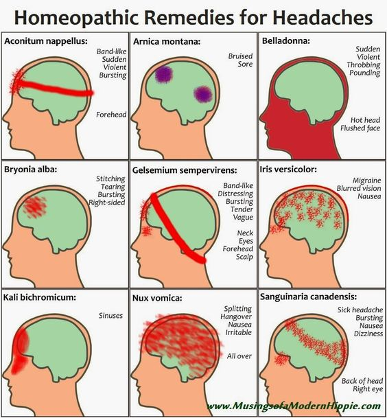 Homeopathic Remedies for Headaches | You have a headache? Child have a headache? Homeopathic remedies can relieve…naturally. This is a great visual diagram to help you find a remedy to suit.