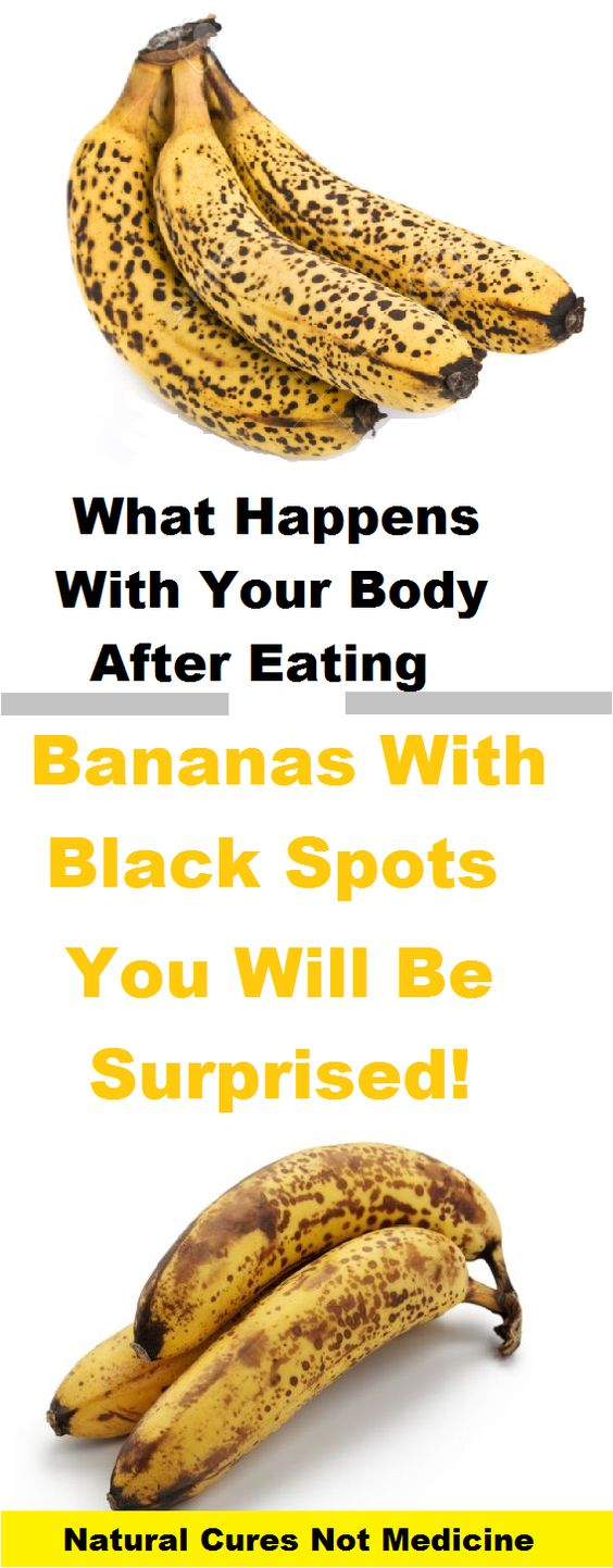 What Happens With Your Body After Eating Bananas With Black Spots - You Will Be Surprised!: