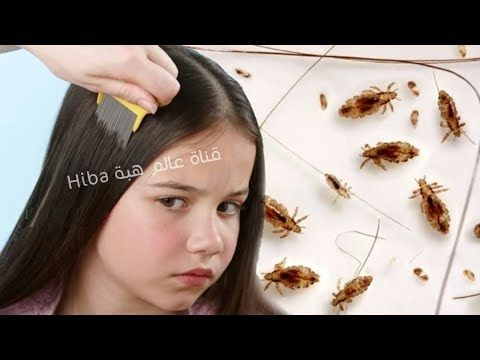 Youtube Health And Beauty Lice Removal Beauty
