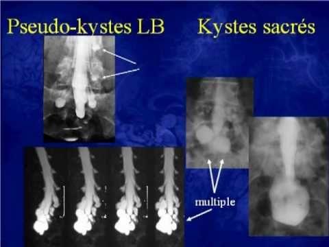 Tarlov Cysts- kystes méningés sacrés (Tarlov et al) - by Claudine Goze-Weber found on YouTube