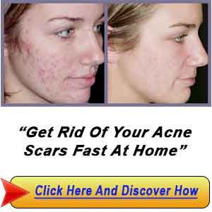How to get rid of acne scars get rid of all types of acne fast at how to get rid of acne scars get rid of all types of acne fast at theacnecode eliminate zits fast pinterest hormonal acne and skin treatments ccuart Gallery