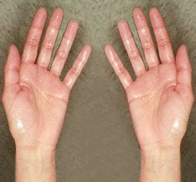 how to stop clammy hands and feet
