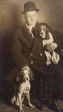 Handsome Beagles w Man in Tight Derby Hat~ Vintage Real Photo Postcard~Dogs~1915