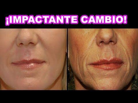 Quita Las Arrugas De Tu Boca En 3 Días Remedio Casero Para Reducir Arrugas Youtube Home Remedies For Wrinkles Wrinkles Natural Home Remedies