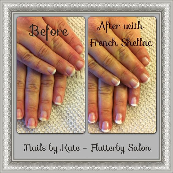 French Shellac
