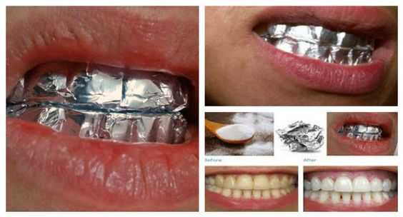 There are many DIY tooth whitening methods, but this one will definitely sweep you off your feet. And, you won't believe what the magic is all about. Aluminum foil. You first start by mixing baking soda, salt, and water to make a paste. Apply this paste on your teeth then apply a layer of tin foil on top of it. It should cover your teeth. Leave the foil on for one hour, then remove and brush your teeth as usual.