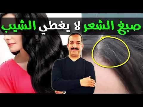 صبغ الشعر لا يغطي الشيب و هذه الطريقة الصحية لتغطيته الدكتور محمد أوحسين Youtube Health And Beauty Beauty Hair Beauty