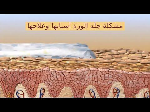 Pin On مشكلة جلد الوزة اسبابها وعلاجها