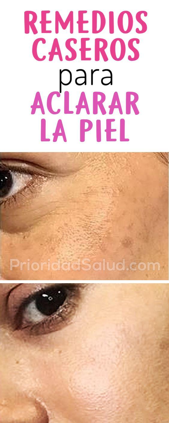 Como Aclarar La Piel Con Remedios Naturales Como Blanquear La Piel Agua Oxigenada Tratamientos Para La C Beauty Remedies Sagging Skin Remedies Skin Remedies