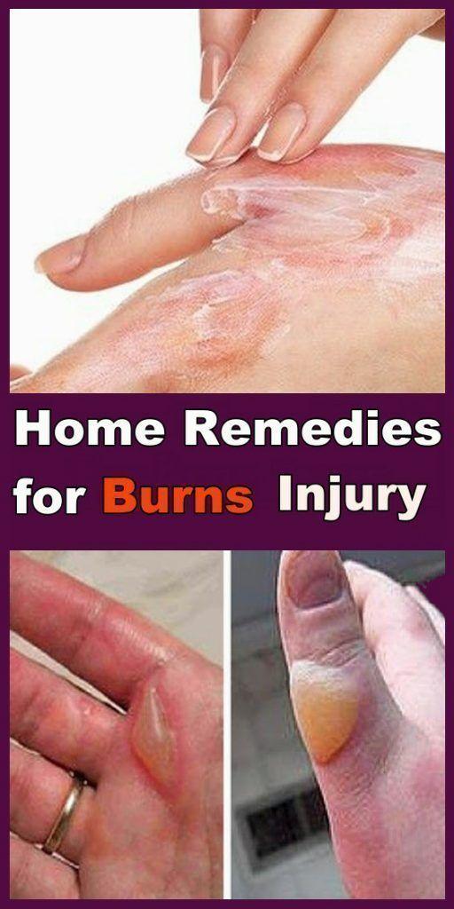 3e2e1178c79256c3ca2303451e240d14 - How To Get Rid Of Ice Burn On Face