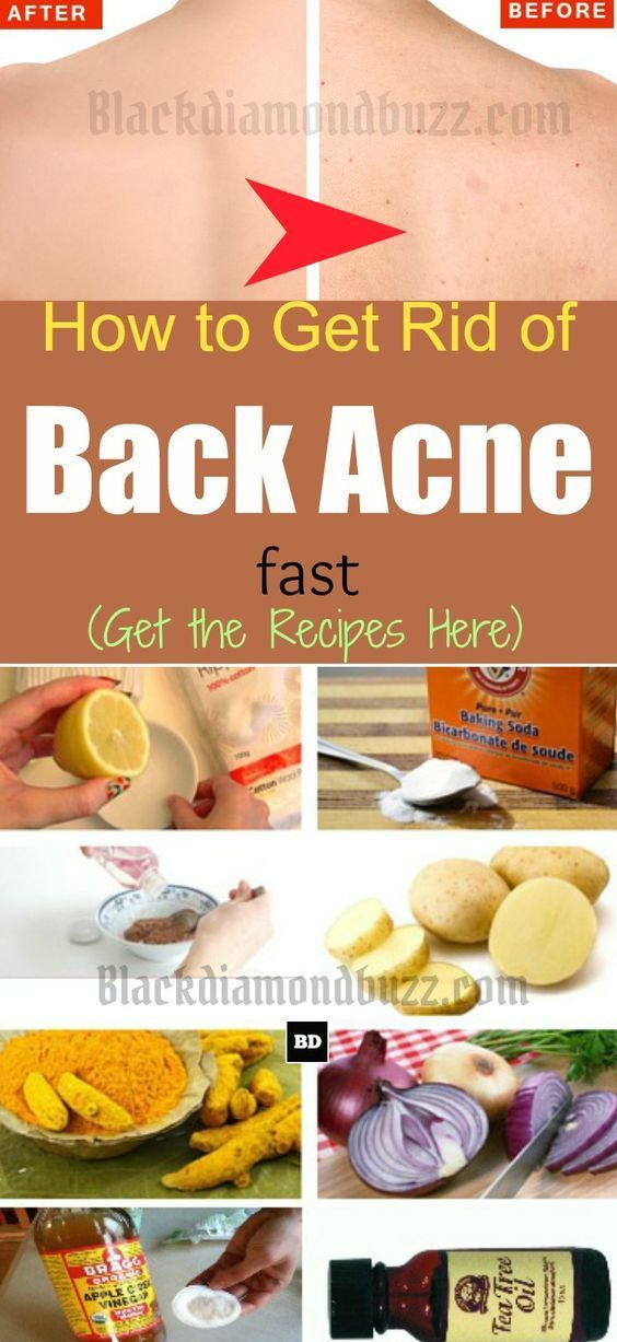 3ed119f48c17192b94f5de6573bf05d8 - How To Get Rid Of Back Acne Scars Home Remedies