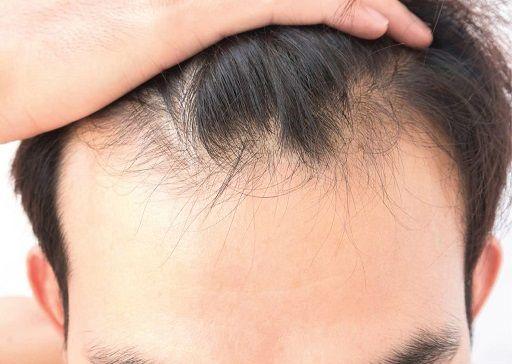 صبحت عملية زراعة الشعر في أفضل مراكز زراعة الشعر في تركيا الحل الأمثل لأى شخص يبحث عن حل نهائي لمشكلته للتخلص من هذا المرض وإعادة الثقة لنفسه بعد الحزن الذي يص