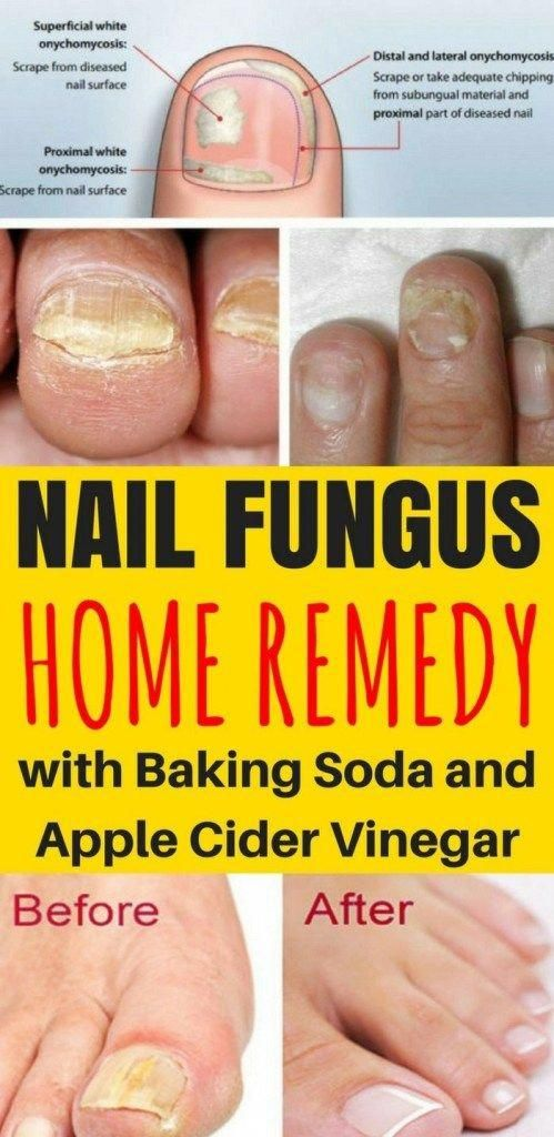 Home Remedies For Brittle Nails Top 10 Home Remedies Brittle Nails Nail Remedies Healthy Nails