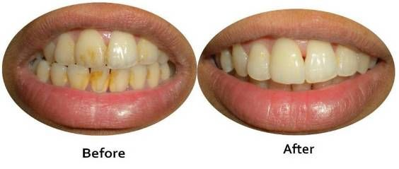 Get confidence smile with the beneficial #dental #implant treatments