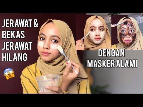 Cara Menghilangkan Bekas Jerawat Mencerahkan Wajah Secara Alami Youtube Jerawat Wajah Masker Wajah