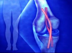 New Ligament Discovered In the Human Knee. This could signal a breakthrough in the treatment of patients with serious ACL injuries.