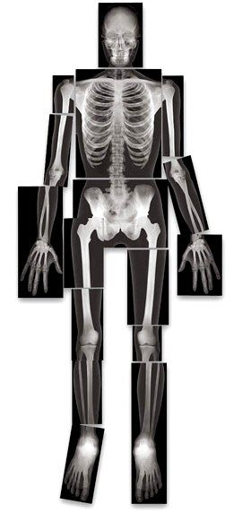 full body x ray skelet...