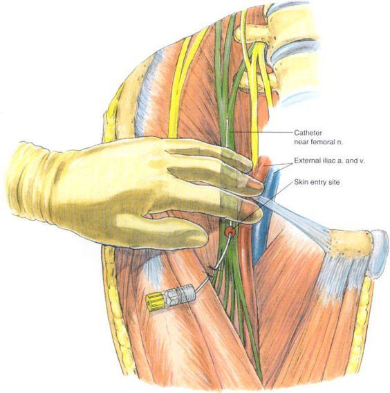 femoral nerve block | ncv/emg | pinterest | femoral nerve, Muscles