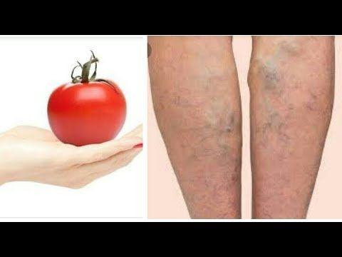 حبة طماطم تعالج وتقضي نهائيا على دوالي الساقين والاوردة العنكبوتية علاج دوالي الساقين بسرعة و نهائيا Youtube Aloe Vera Skin Care Aloe Vera For Skin Tomato