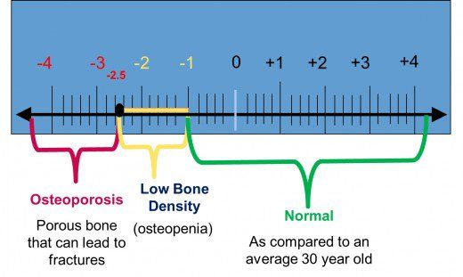 21+ Osteoporosis z and t score information