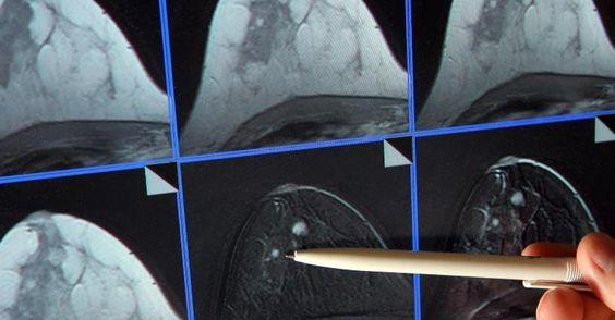 #Gesundheit: Nur selten Falschdiagnosen beim Mammographie-Screening - FOCUS Online: FOCUS Online Gesundheit: Nur selten Falschdiagnosen…