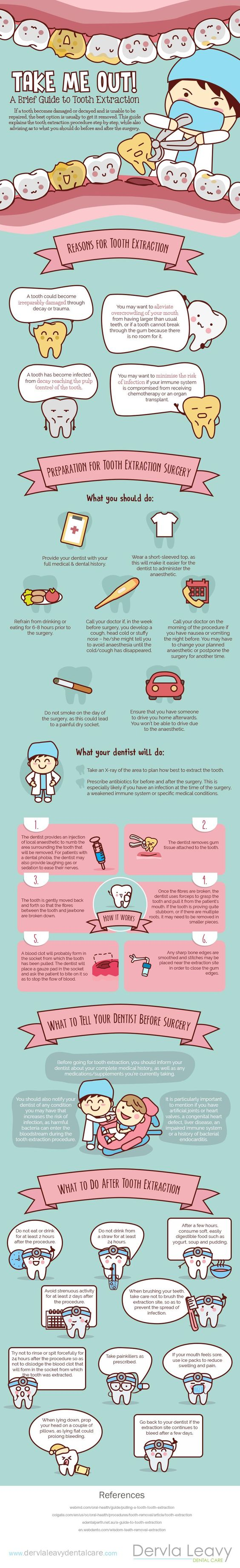 A brief guide to tooth extraction