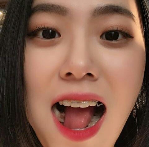 K O R E A N Braces Girls Korean Girl Fashion Cute Korean Girl
