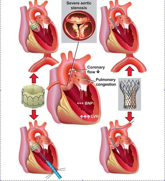 Aortic Stenosis In Children: Trans Catheter Aortic Valve Implantation (TAVI) For