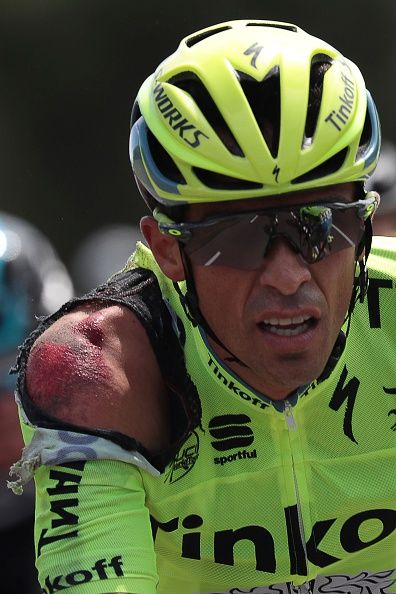 #TDF2016 Spain's Alberto Contador is seen injured after a crash during the 188 km first stage of the 103rd edition of the Tour de France cycling race on July...